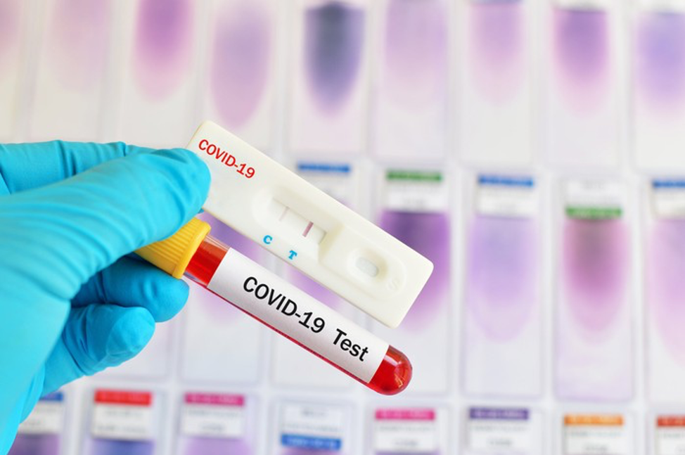 Healthcare worker holding COVID-19 Test. IMAGE SOURCE: GETY IMAGES